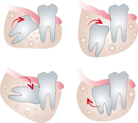 image of Tooth Extractions - Wisdom Teeth, 3rd Molar, etc.